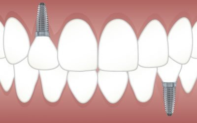 New Technology Makes Dental Implants More Affordable in 2019