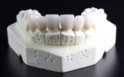 Dental Implants Are The Perfect Option For A Flawless Smile